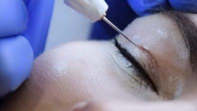 Ameliyatsız Göz Kapağı Ameliyatı
