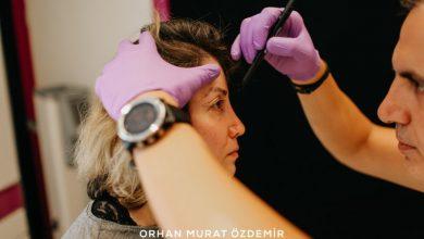 göz estetiği Estetik Cerrah Op. Dr. Orhan Murat Özdemir