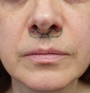 lip lift dudak kaldırma bullhorn ameliyatı planlaması