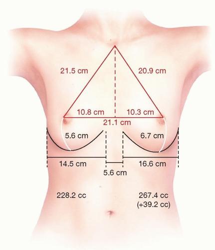 göğüs (meme) dikleştirme ölçüleri mastopeksi