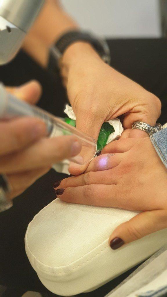 lazerle dövme sildirme fiyatları ankara