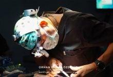 Photo of Kişiye Özel Burun Estetiği Ameliyatı