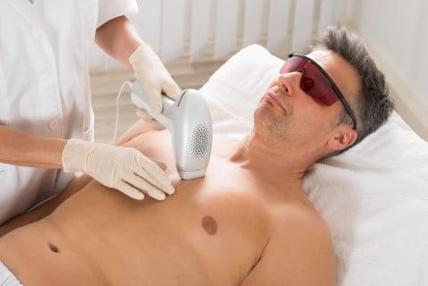 erkek lazer epilasyon ağrı
