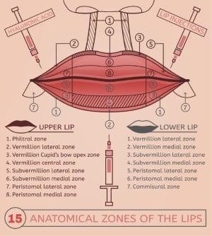 lip lift planlaması permalip kalıcı dudak dolgusu