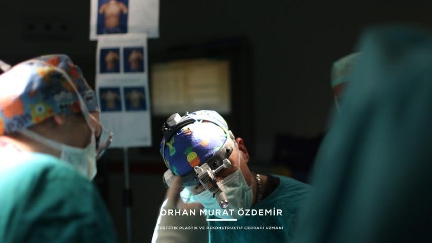 göğüs büyütme Estetik Cerrah Op. Dr. Orhan Murat Özdemir