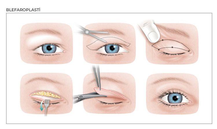 üst göz kapağı estetiği için grafik