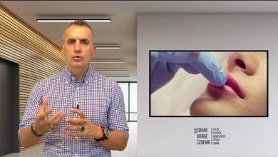 dr. orhan murat özdemir anlatıyor dudak dolgusu hakkında