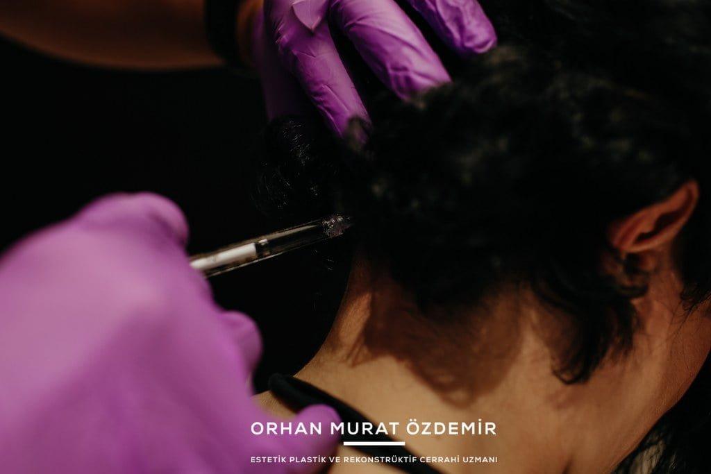 migren botoksu nerelere yapılır