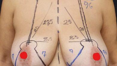 Photo of Meme küçültme ameliyatı mı yoksa Dikleştirme ameliyatı mı olmalısınız?