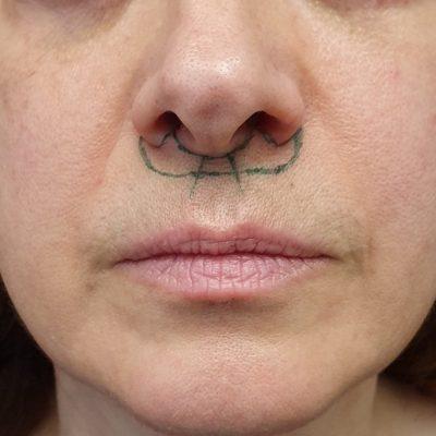dudak kaldırma planlaması